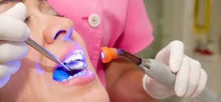 Laser Dental Clinic in Bangalore