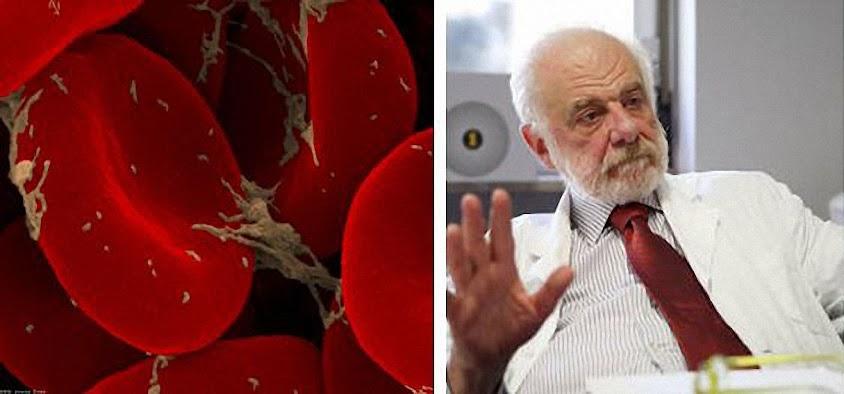 O Prof. Pierluigi Baima Bollone anunciou o achado das micropartículas no Santo Sudário.