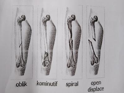 Gambar Apa Itu Fraktur Femur Atau Patah Tulang Paha