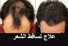6 أطعمة تعمل على منع DHT ومحاربة تساقط الشعر