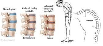 ESPONDILITE ANQUILOSANTE: doença inflamatória crônica afeta as articulações da coluna, quadril, joelhos e ombros