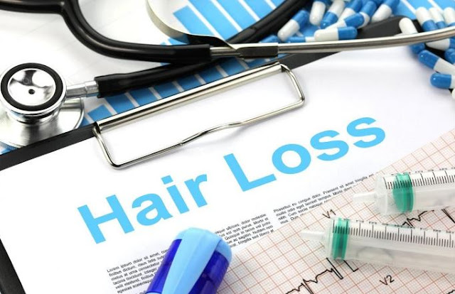 best hair restoration method baldness treatment balding prevention