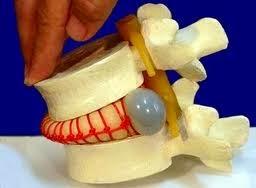 Resultado de imagen de hernia discal como se produce