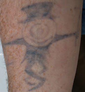 Tattoo fading after fifth picosure session