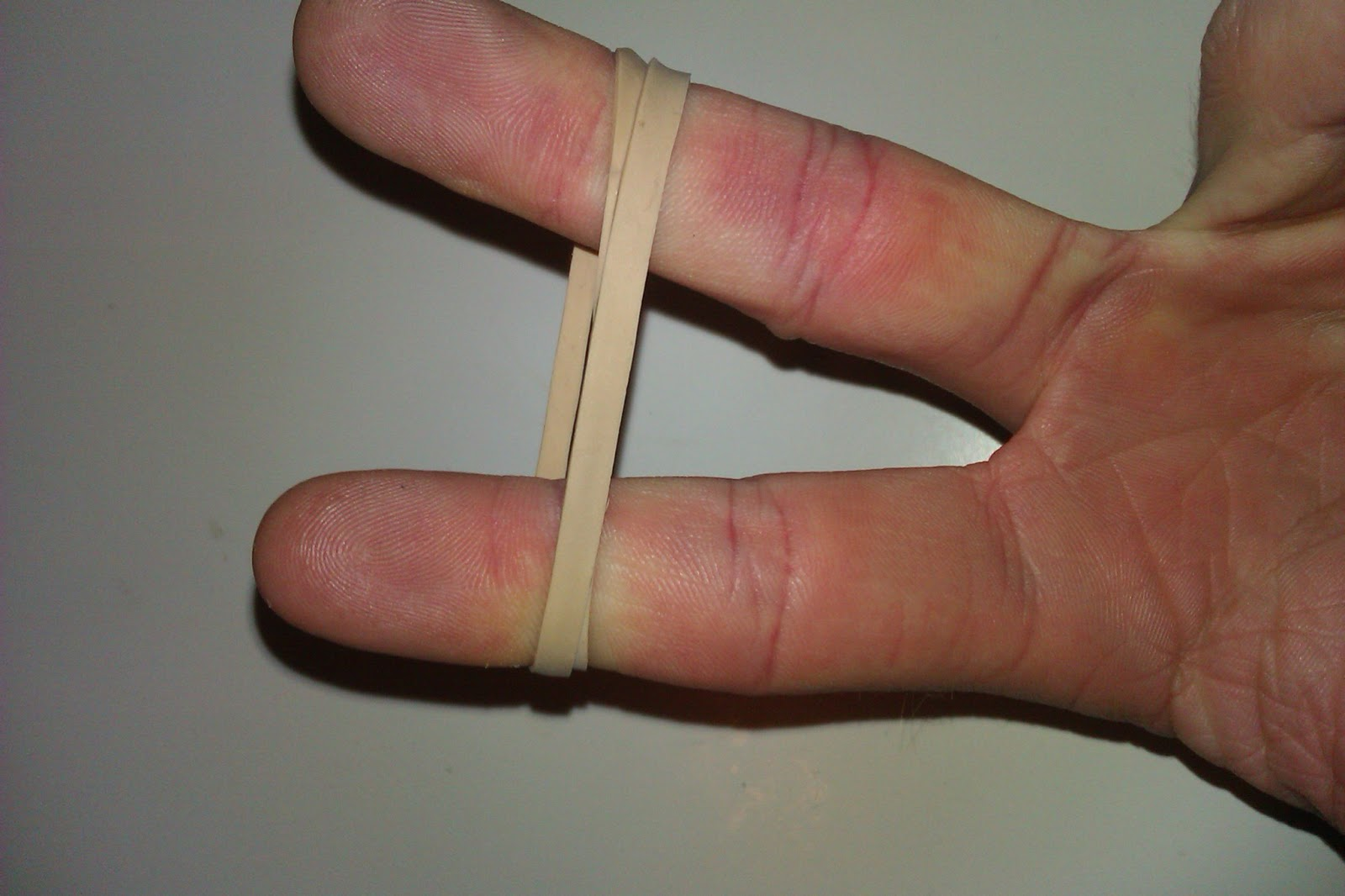 how to tell if your pinky knuckle is broken