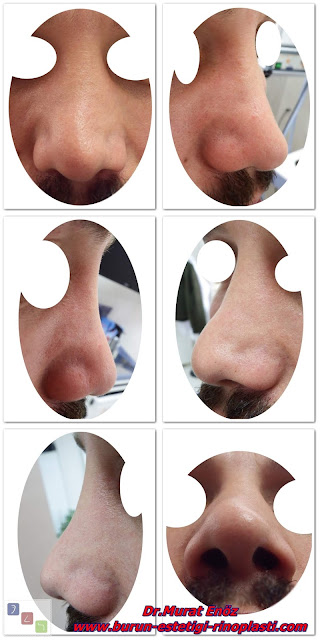 Açık çatı deformitesi - Open roof deformity - Burun törpüleme ameliyatı riskleri - Açık çatı deformitesinin nedenleri