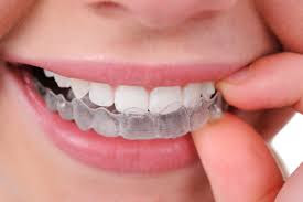 Invisible Braces in Bangalore