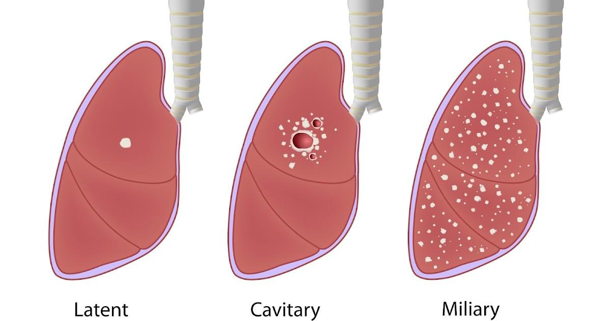 Tuberkuloosirokote