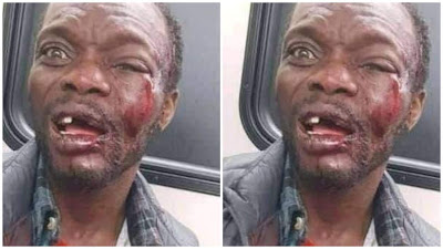 Pastor Beaten To Coma After Condom Fell Off His Bible