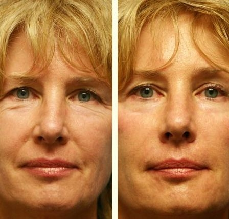 You Might Have Heard About Facial Gymnastics Exercises And How They Can Lift Firm Rejuvenate The Skin On An Individuals Face Neck