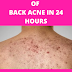 The Best Way To Get Rid Of Back Acne Scar