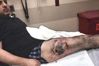 Έσκασε η μπαταρία στην τσέπη του και του έκαψε το πόδι (Σκληρές εικόνες)