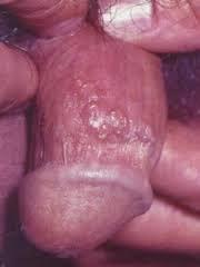 Sipilis di penis