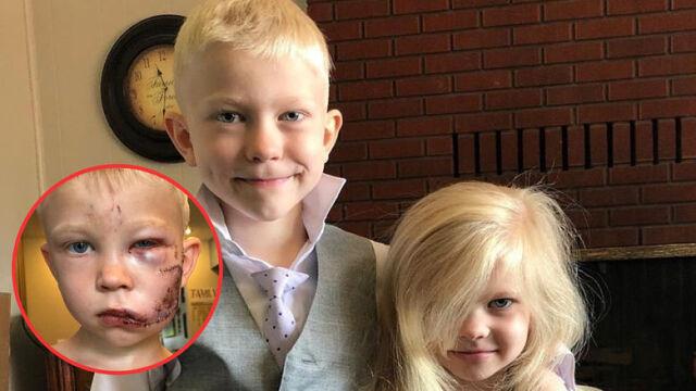 Маленький мальчик спас вою сестричку от собаки