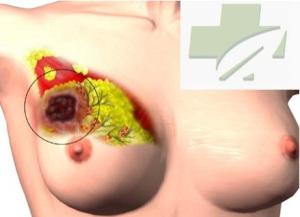 Gambar Obat Kanker Payudara Yang Alami