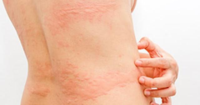 Comment combattre les allergies cutanées grâce à la bouille de graines de lin