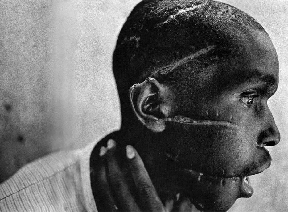 A Rwandan boy left scarred after being liberated from a death camp. - The 63 Most Powerful Photos Ever Taken That Perfectly Capture The Human Experience