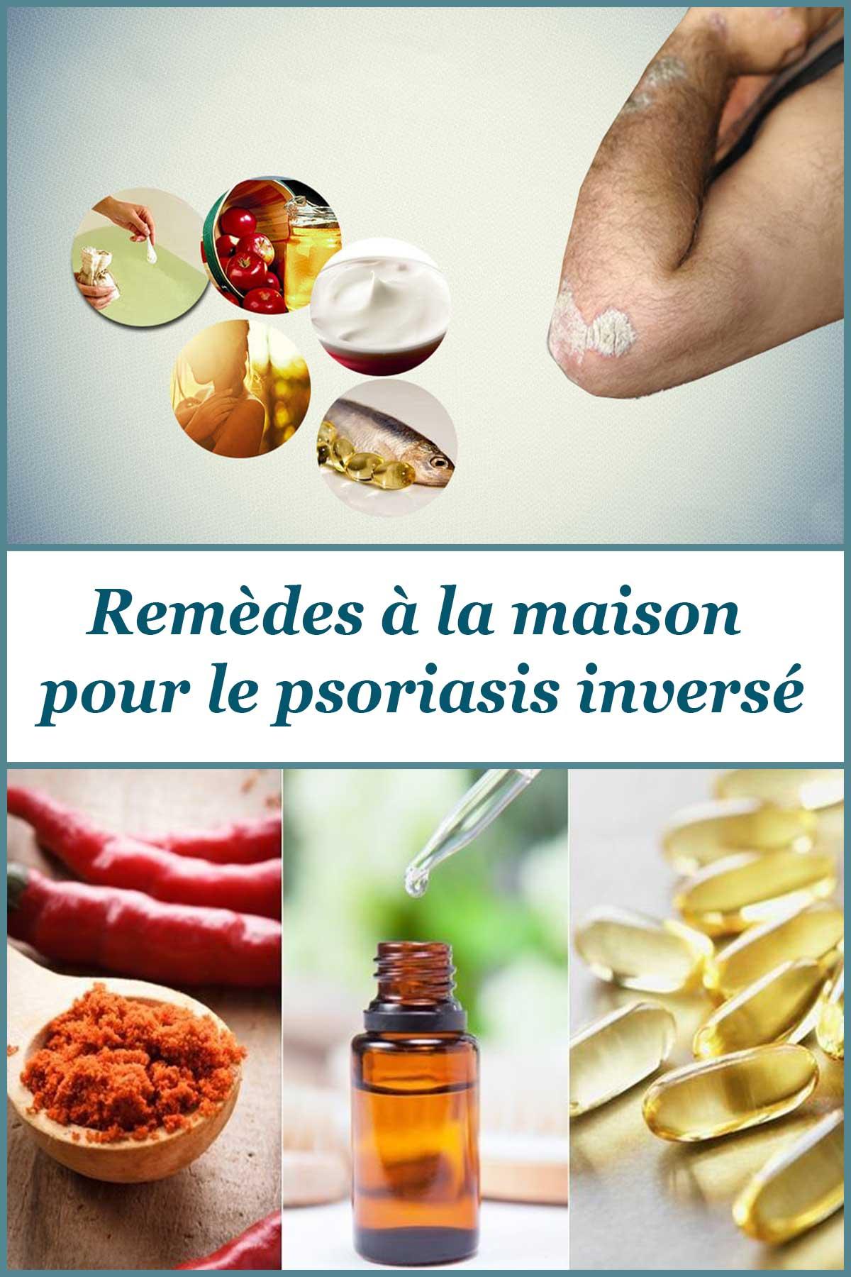 Remèdes à la maison pour le psoriasis inversé