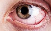 Göz Kuruluğuna Bitkisel Formül, Göz Kuruluğu Hastalığına Ne İyi Gelir