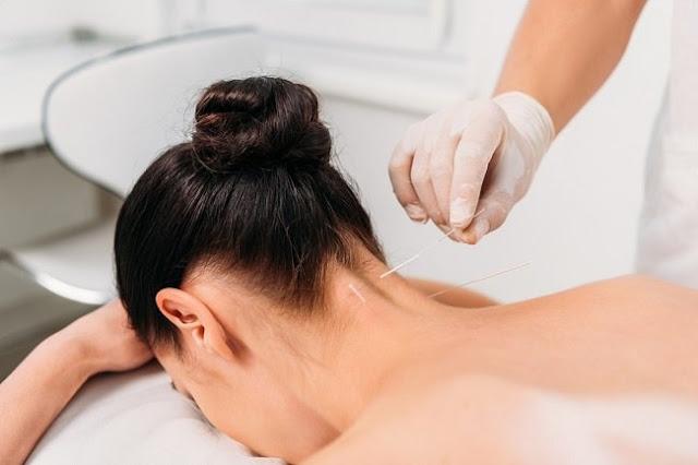 3 Manfaat Akupunktur Untuk Kesehatan Tubuh