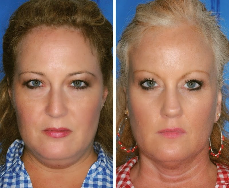 This Is What 7 Smoker vs. Non-Smoker Identical Twins Look Like After Years Of Lighting Up - Is it the twin on the left or right