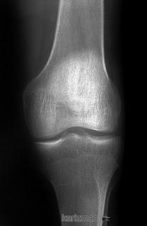 Description: knee x-ray 1