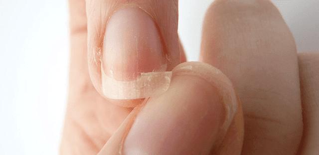 remedio para fortalecer las uñas