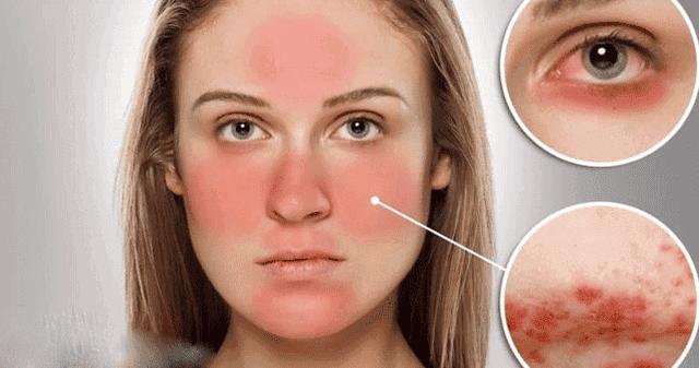 علاج حساسيه الوجه وجفافه في يوم واحد