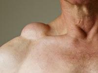 Apakah lipoma bersifat kanker?
