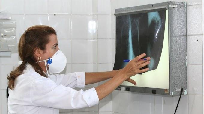 Fiocruz vai testar eficácia da vacina contra tuberculose para Covid-19