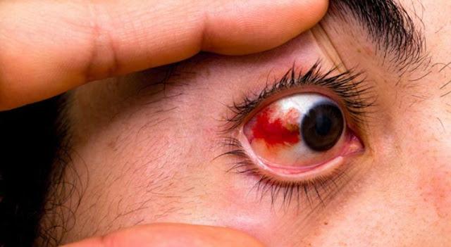 Olhos Vermelhos Podem Ser Sintoma Do Coronavírus