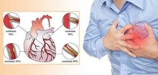 Obat Jantung Koroner Paling Ampuh Langsung Sembuh