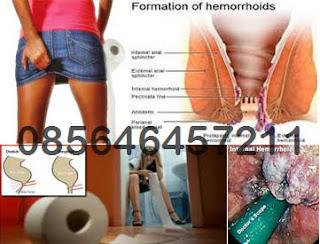 Diare Kronis Salah Satu Sebab Wasir