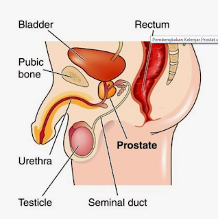 Processing Of Prostate Claim And How To Overcome It