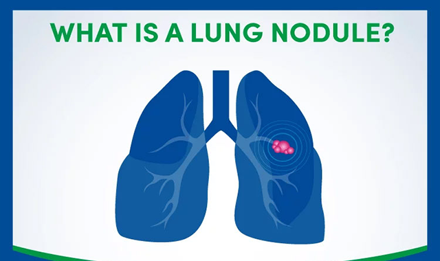 What is a Lung Nodule? #infographic