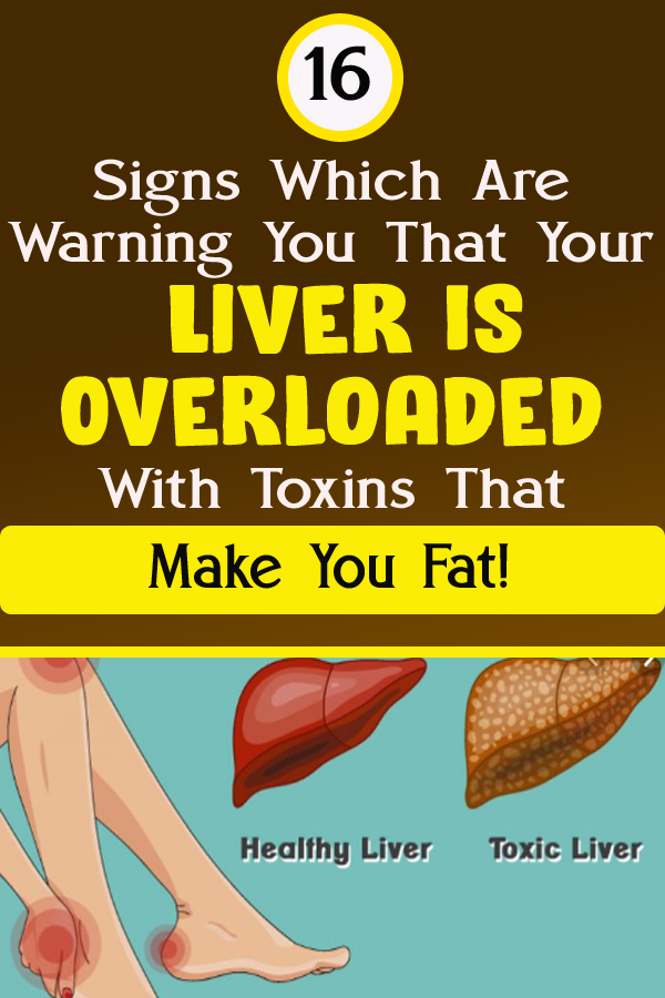 16 Signs Which Are Warning You That Your Liver Is Overloaded With Toxins That Make You Fat!