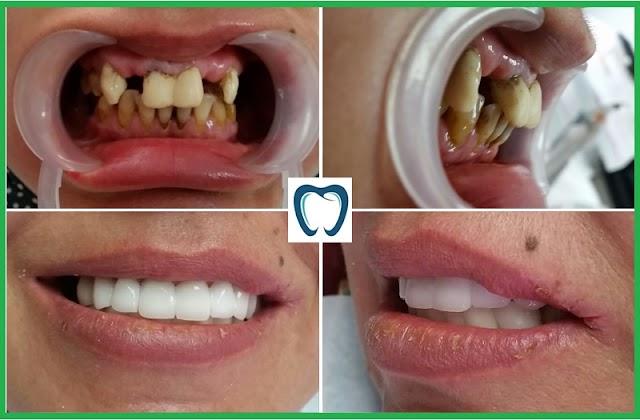 Làm răng sứ tphcm ở đâu tốt giá bao nhiêu tiền