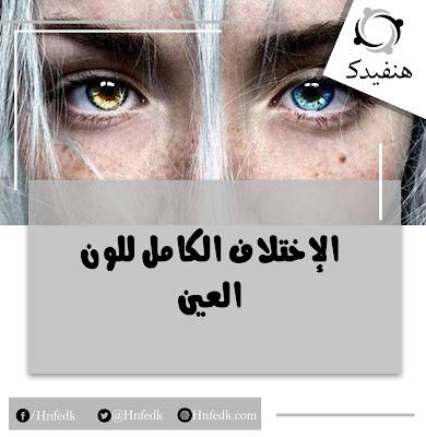 الوان عيون مختلفة