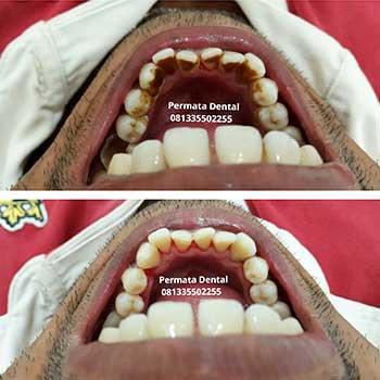Ahli Gigi Palsu Bali Permata Dental Bersihkan Karang Gigi Gigi