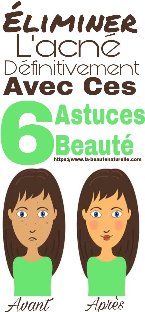 Éliminer l'acné définitivement avec ces 6 astuces beauté