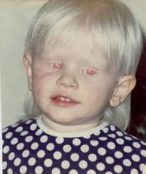 Resultado de imagem para fenilalanina e albinismo