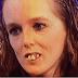 Ela passou toda a vida sendo humilhada por conta de seus dentes... Mas algo surpreendente acabou transformando sua vida!