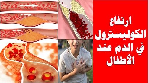 التغذية السليمة وارتفاع الكوليسترول في الدم عند الأطفال