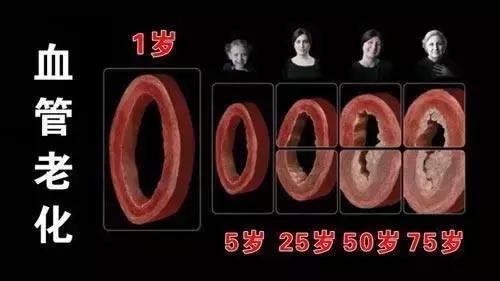 這根血管,最易堵,很多人半身不遂!(頸動脈)