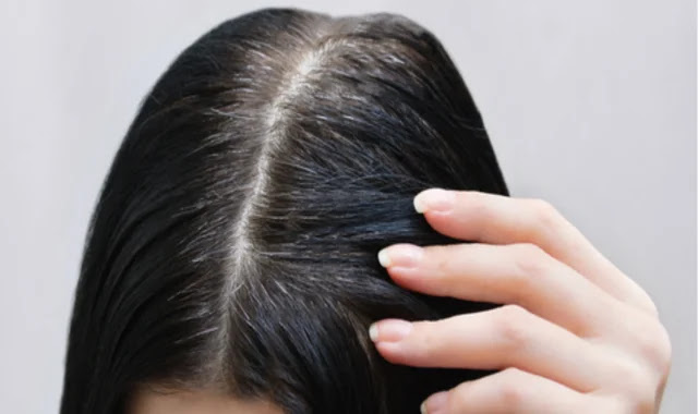 Laser treatment of early gray hair