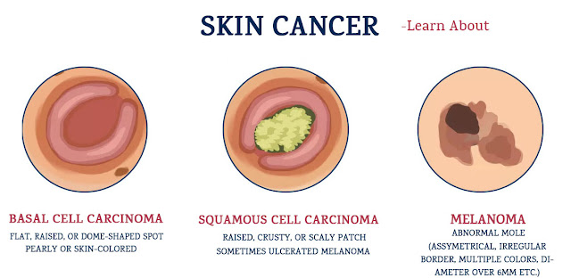 What Are the Symptoms of Basal Cell Carcinoma
