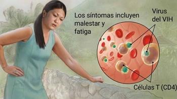 VIH sintomas iniciales de diabetes