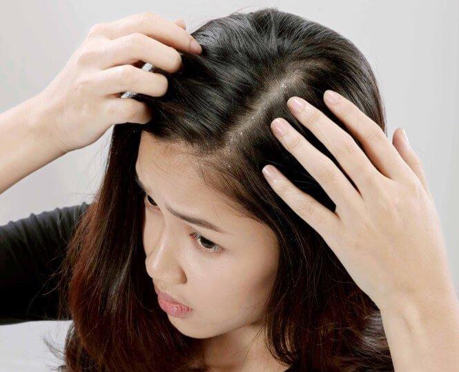 da đầu có gầu liệu có phải bị bệnh gì không ?