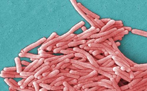 Legionella Pneumophilia