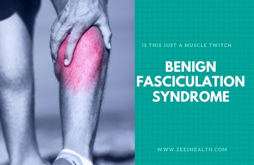 What is benign fasciculation syndrome?